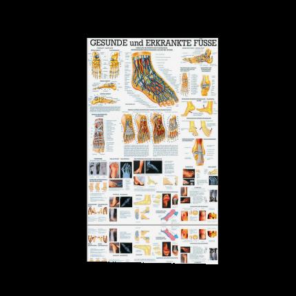 Lehrtafel: Gesunde und Erkrankte Füsse 70 x 100 cm